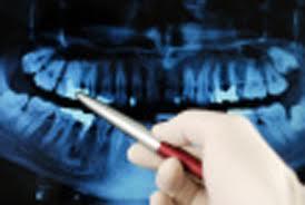 Dental Examination dublin clinic