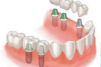 Dental implants, or tooth implants