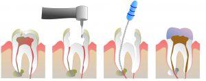 root_canal_illustration_molar
