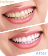 tooth-whitening-dublin