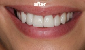after-Cosmetic-dentist