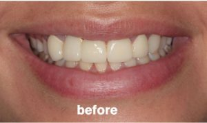 before-cosmetic-dentist
