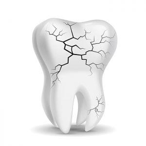 broken-tooth-dublin