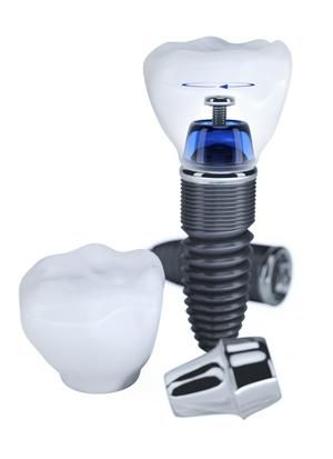 dental-Implants-novadent