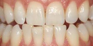 dental-cleanings