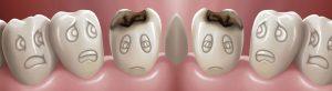 novadent-dental-dublin