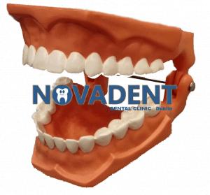 novadent-dental-laboratory